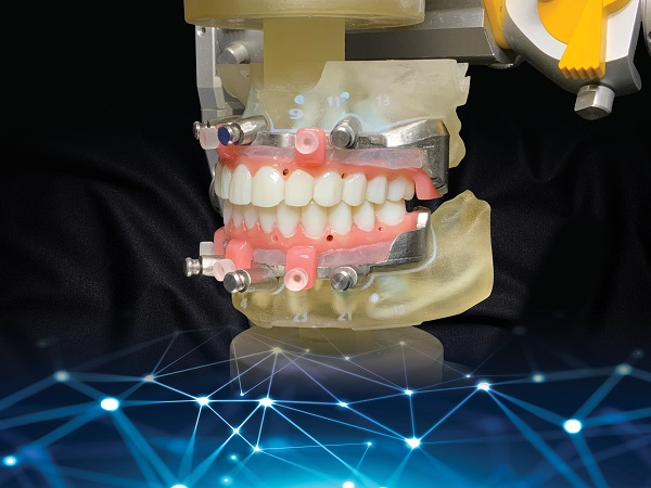 CT Guided Prosthetic